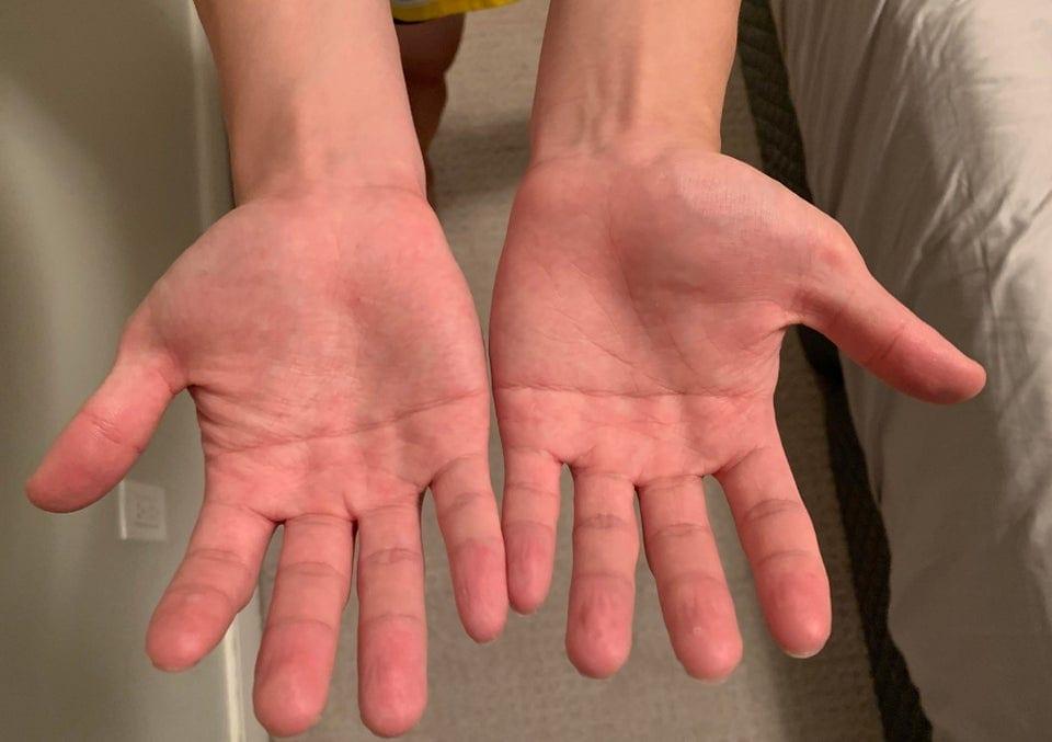 17 интересных случаев, когда люди показали изюминки своего тела, которые делают их непохожими на других здоровье,интересное,люди,особенности