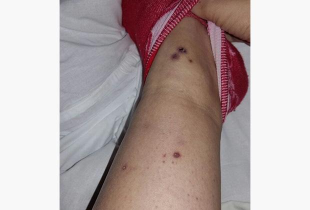 Фотографии ран погибшей