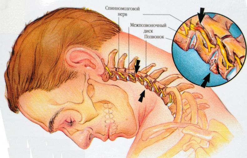 Картинки по запросу Лечебная физическая культура при шейном остеохондрозе