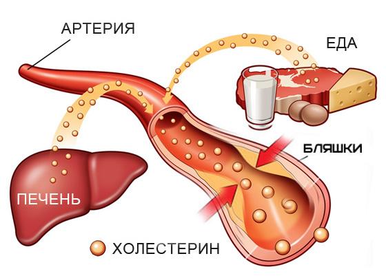 Естественные способы уменьшения уровня плохого холестерина в течение 4 дней