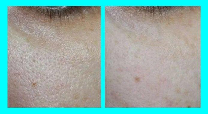 А как вы кожу такой ровной сделали: простой метод по визуальному улучшению кожи в 50+