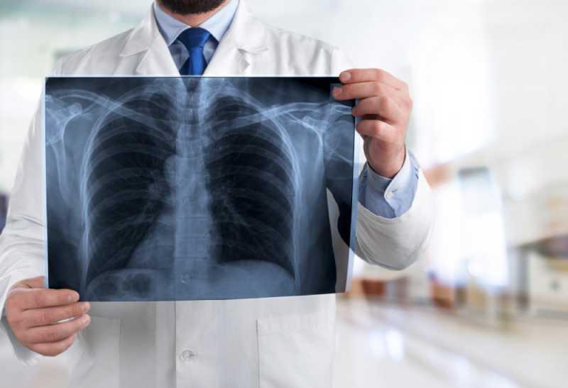 -Скрытое- воспаление легких: как вовремя распознать эту коварную болезнь?