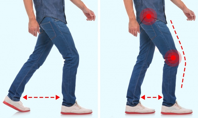 7 особенностей походки, которые говорят о проблемах со здоровьем