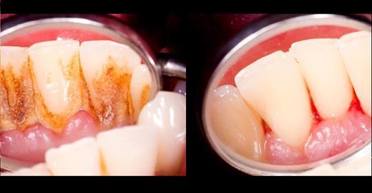 4 смеси, которые полностью удаляют налет на зубах