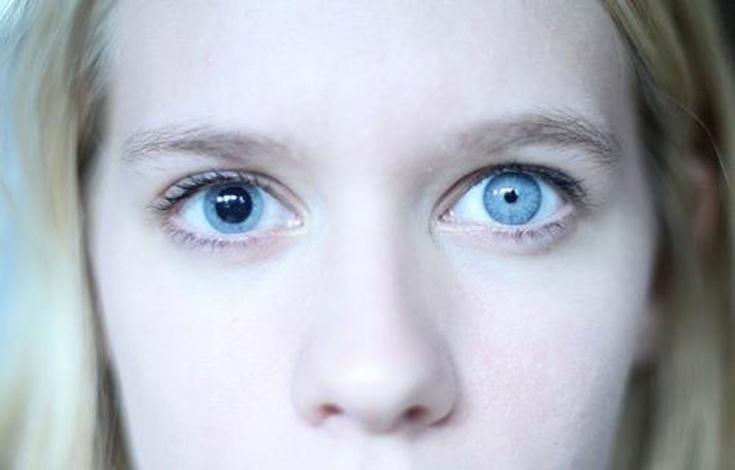Ленивый глаз – как не упустить коварный синдром