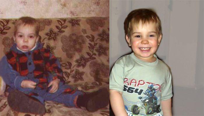 Малыши «до» и «после» того как их усыновили. Когда они обретают дом и семью, их фотографии несравнимы… (15 ФОТО)