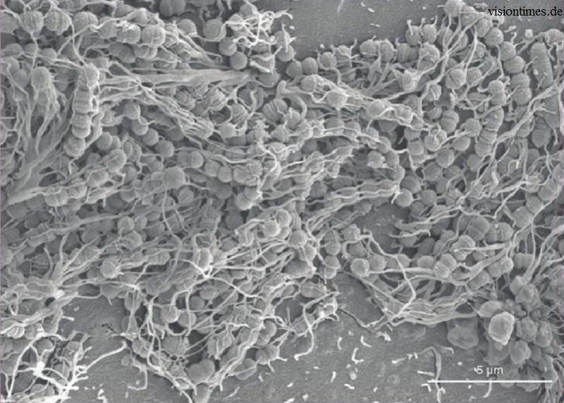 Как зубной налет превращается в кариес гигиена,здоровье,инфекции,медицина