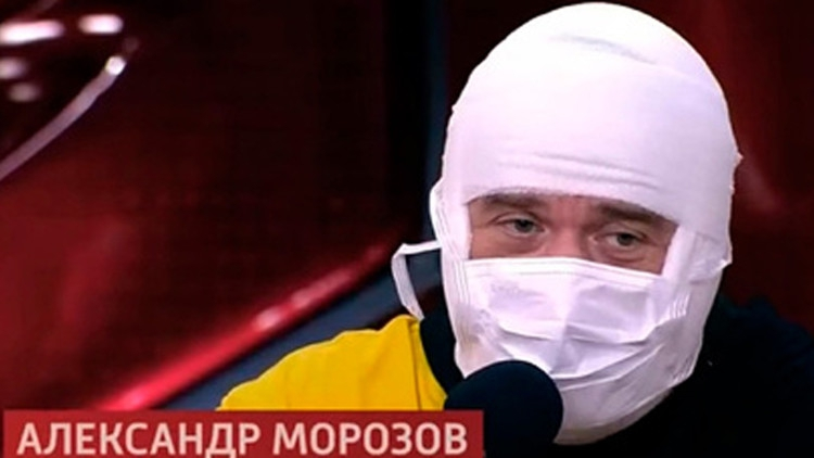 Звезда «Кривого зеркала» Морозов появился на публике с перебинтованной головой Шоу-бизнес