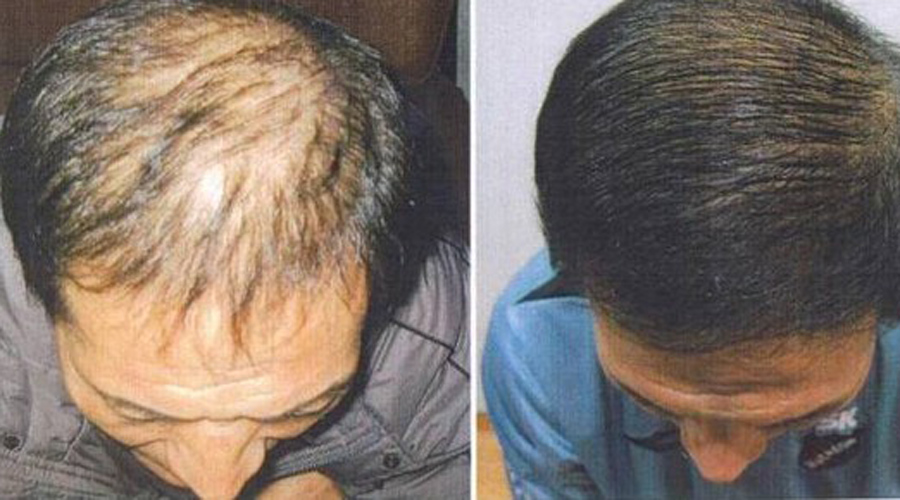 Хозяйственное мыло: хитрости использования, которые придумали в тюрьме выпадение волос,дезинфекция,использование мыла,купить хозяйственное мыло,мыло,Тренинг,хозяйственное мыло