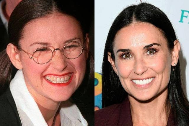 15 знаменитостей до и после …