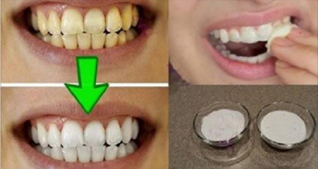 Гарантированное отбеливание зубов менее чем за 2 минуты. Очень эффективно