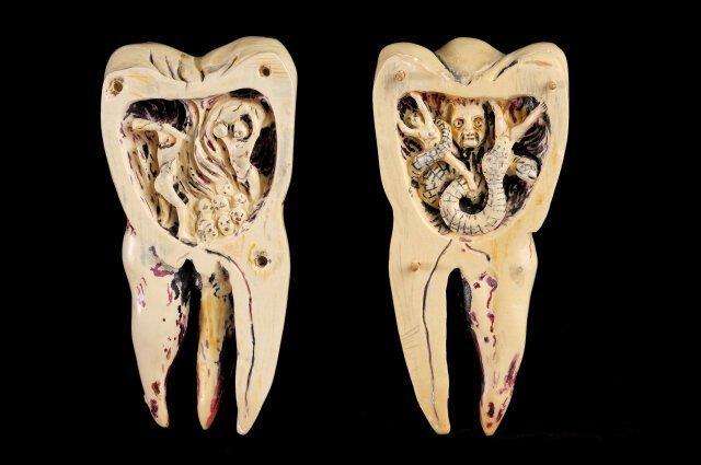 Зубные черви врач, дантист, древность, заблуждения, история, медицина, суеверия