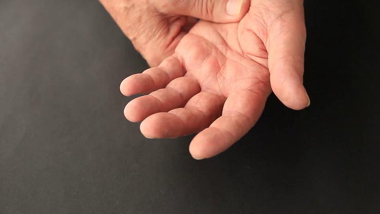 8 серьезных заболеваний, которые можно определить по руке