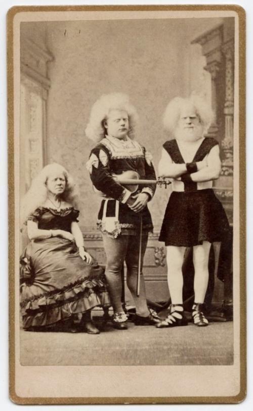 Альбиносы отталкивали и одновременно привлекали зевак исторические снимки, странности, страшно, фото, цирк уродов