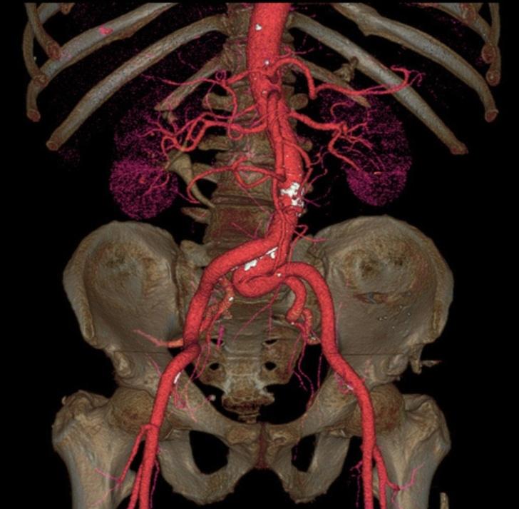 18 рентгеновских снимков, которые расскажут о вашем организме лучше, чем учебник по анатомии