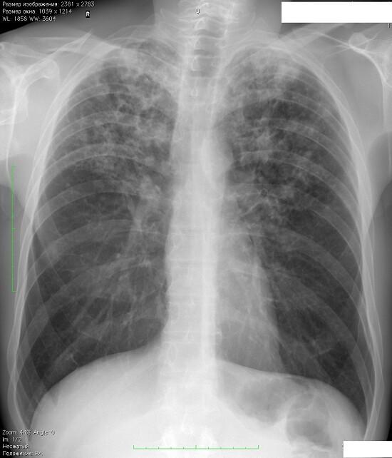 Туберкулез: симптомы и первые признаки в начальной стадии болезни,здоровье,симптомы,туберкулез