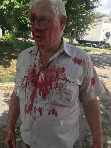 В Харькове коп избил пенсионера за просьбу уступить место в трамвае