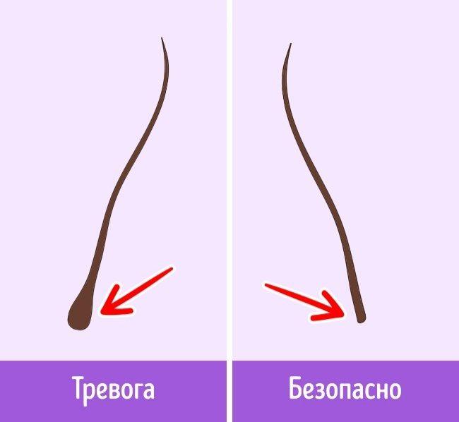Почему выпадают волосы и как это остановить