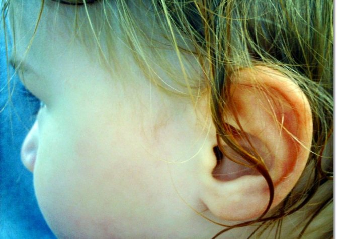 Вода в ухе. Как избавиться, что делать если болит,  лекарства вода в ухе,здоровье,медицина,народная медицина,самолечение,ухо