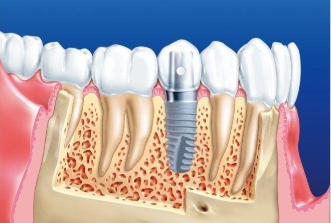 Интересные факты об имплантации зубов