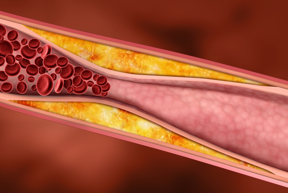 Правда и мифы о холестерине в крови при атеросклерозе