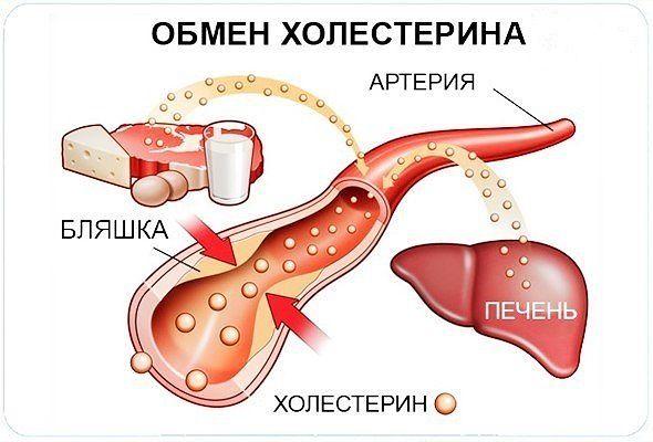 Уровень холестерина можно снизить