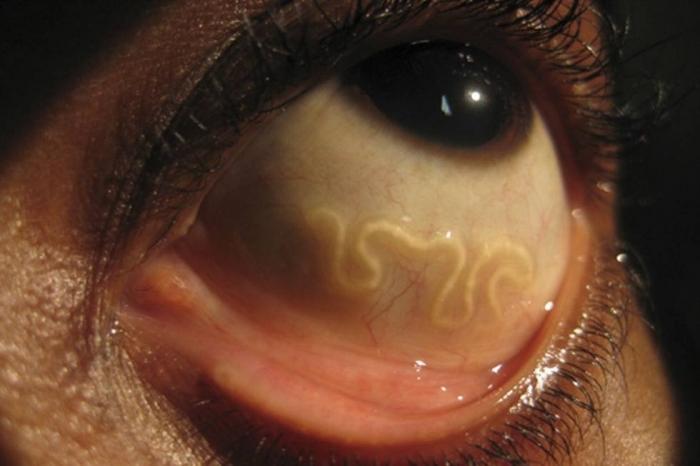 Картинки по запроÑу червь из глаза