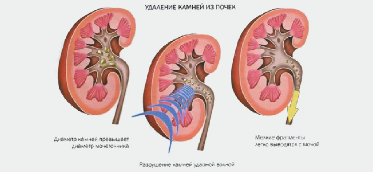 Лечениемочекаменной болезни
