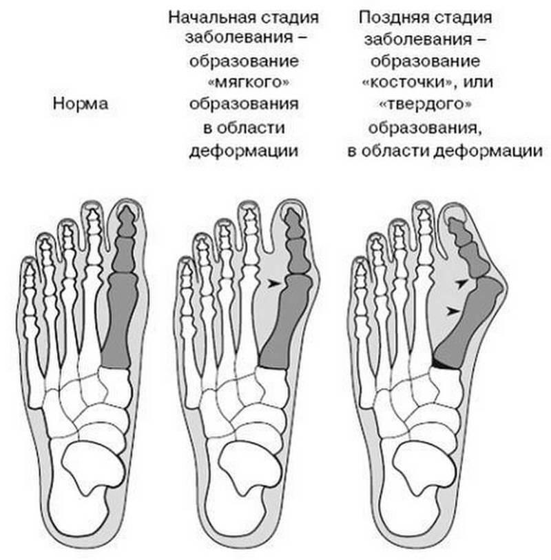 Эффективные упражнения от косточек на ногах.