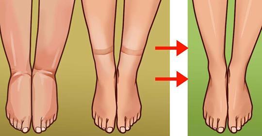 Средство от задержки жидкости удалит отёки, жир с живота, очистит артерии и стабилизирует сахар в крови!