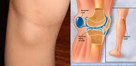 Как избавиться от жидкости в коленном суставе? Проверенный и безопасный способ