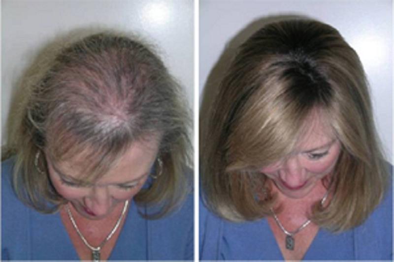Быстрый рост волос благодаря этому трюку! Через месяц вы не поверите своим глазам