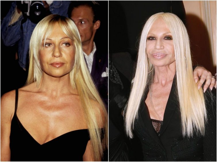 Донателла Версаче, 63 года внешность, возраст, звезды, знаменитости, красота