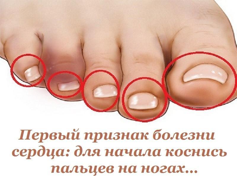 Первый признак болезни сердца: для начала коснись пальцев на ногах...