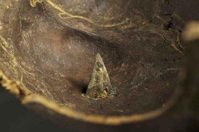 Часть черепа с бронзовым наконечником, надеюсь его обладатель умер мгновенно. история, мумии, наука, скелеты