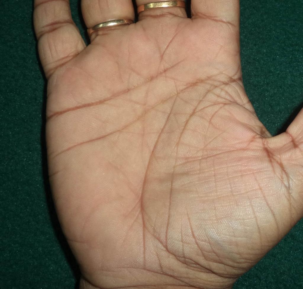 Разрыв на линии жизни на руке: значение, нюансы расшифровки с фото
