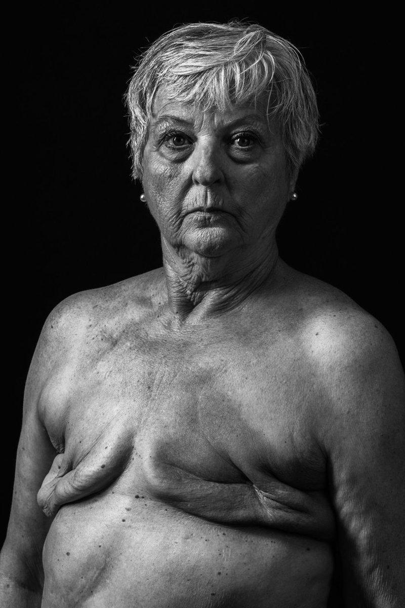 Рак груди, Хью Кидд national geographic, конкурс, красота, природа, удивительно, фото, фотография, фотоподборка