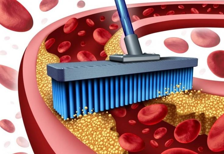 8 продуктов, которые прочищают артерии природным способом