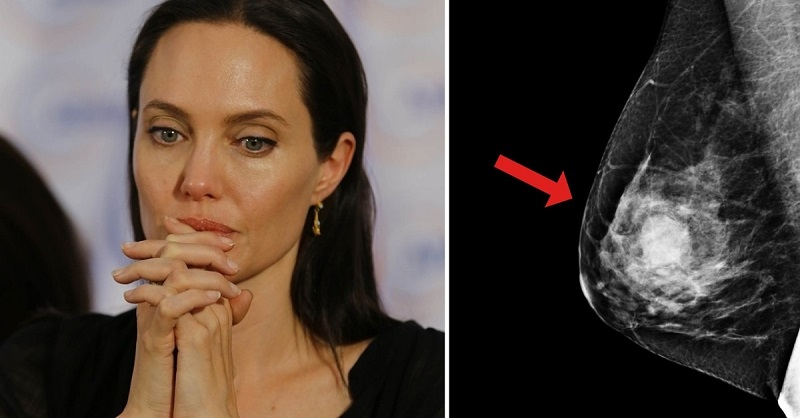 Анджелина Джоли — худший из …