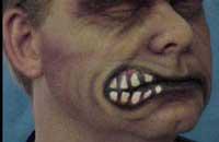 Особенности национальной стоматофобии