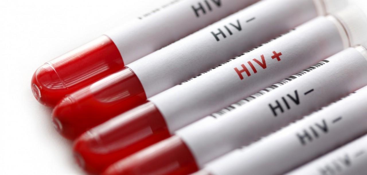 Догоним и перегоним Африку: Названы регионы России с самой высокой смертностью от ВИЧ