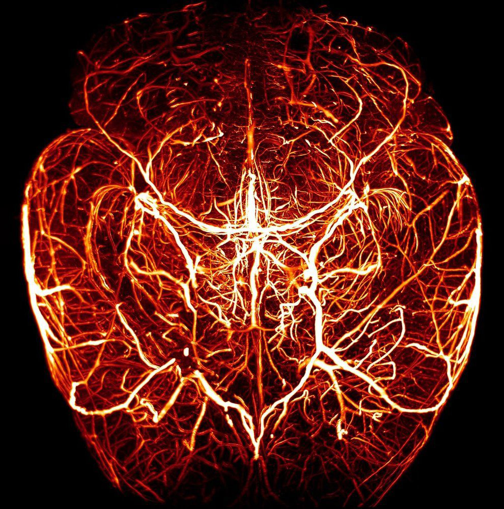 Макроснимки сердечно-сосудистой системы медицина и здоровье,необычное,организм,фотографии