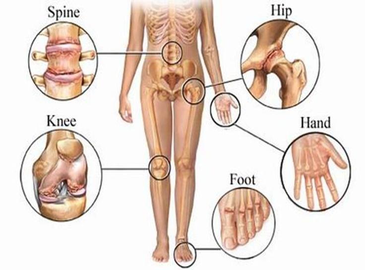 Основные триггеры артрита: что категорически нельзя есть артрит