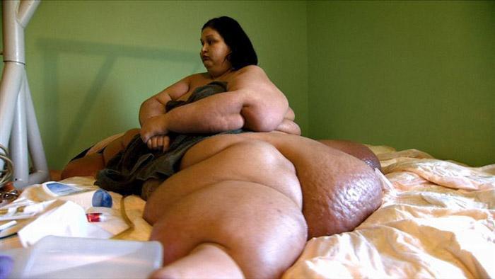 Женщина, которая весила почти полтонны, похудела на 80% от своего веса