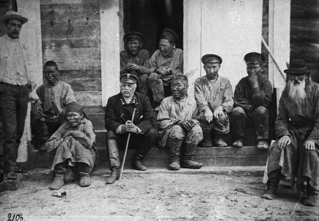 Жизнь прокаженных в Советском Союзе