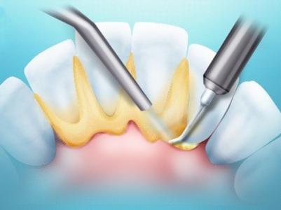 Зубной камень - как убрать н…