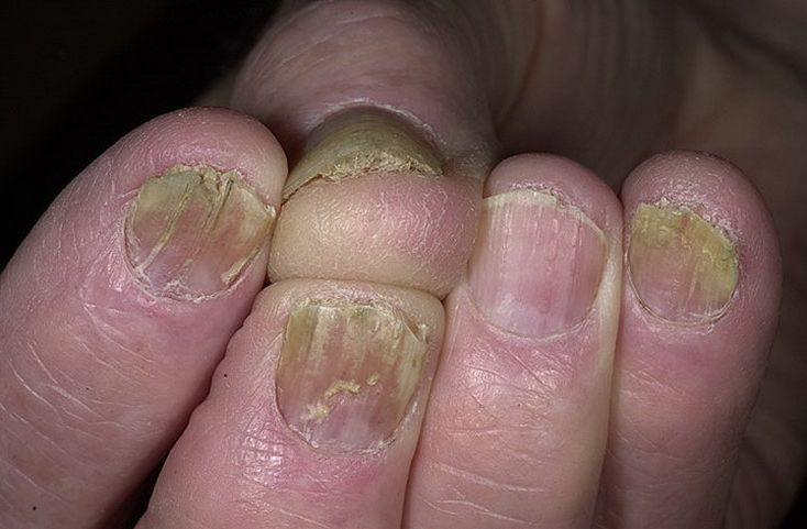 Картинки и название грибка на ногтях