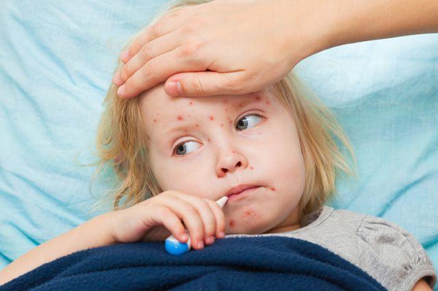 Возвращение «детской чумы». Можно ли защититься от кори?