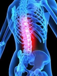Как лечить остеопороз народными способами...