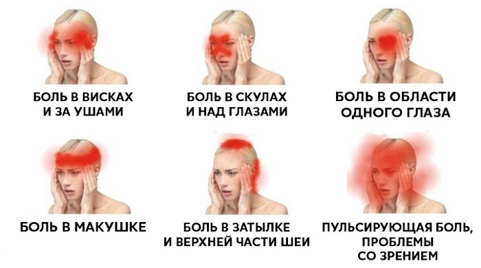 Головную боль нельзя игнорировать! 5 сигналов, которые ...